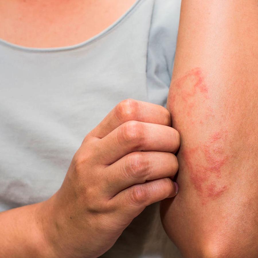 dermatite de contato condilom în mucoasa bucală